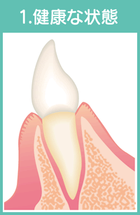 歯周病の進行01