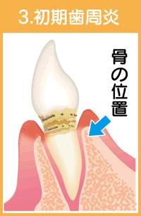 歯周病の進行03